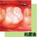 徳島県の小児歯科