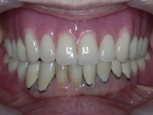 義歯を装着した状態で前から見たところ