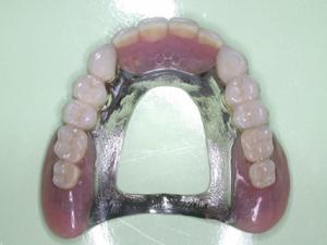 義歯を取り外した状態です。温度や味を感じやすいように真ん中がくりぬいてあります