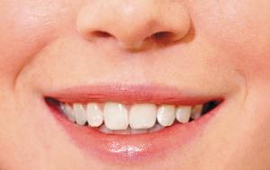 審美歯科の写真