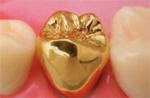 徳島県の審美歯科