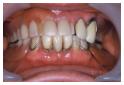 マグネット義歯