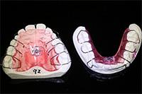 床矯正装置(歯列の拡大装置